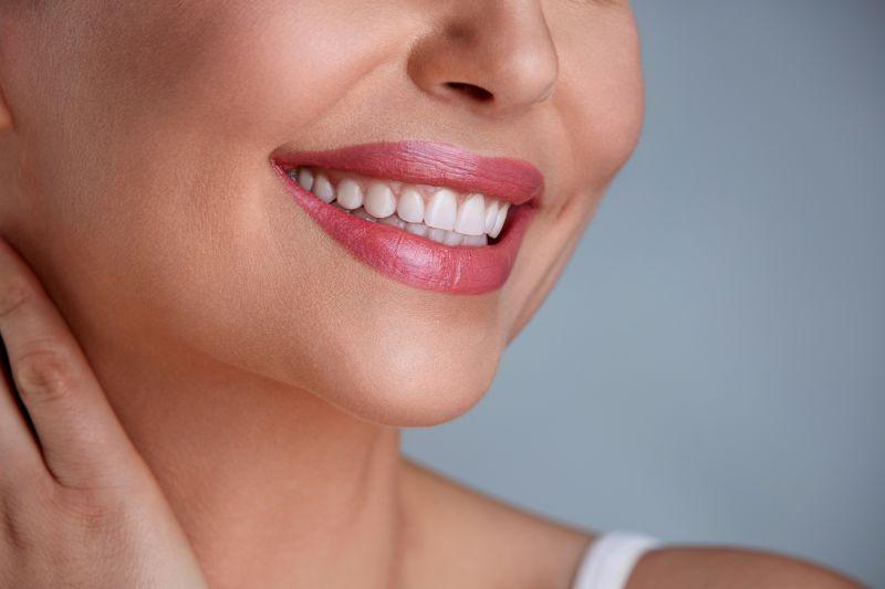Estetica dentaria